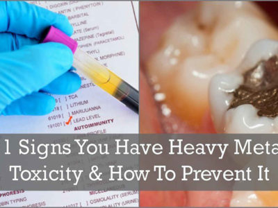 11 Signs You Have Heavy Metal Toxicity & How To Prevent It