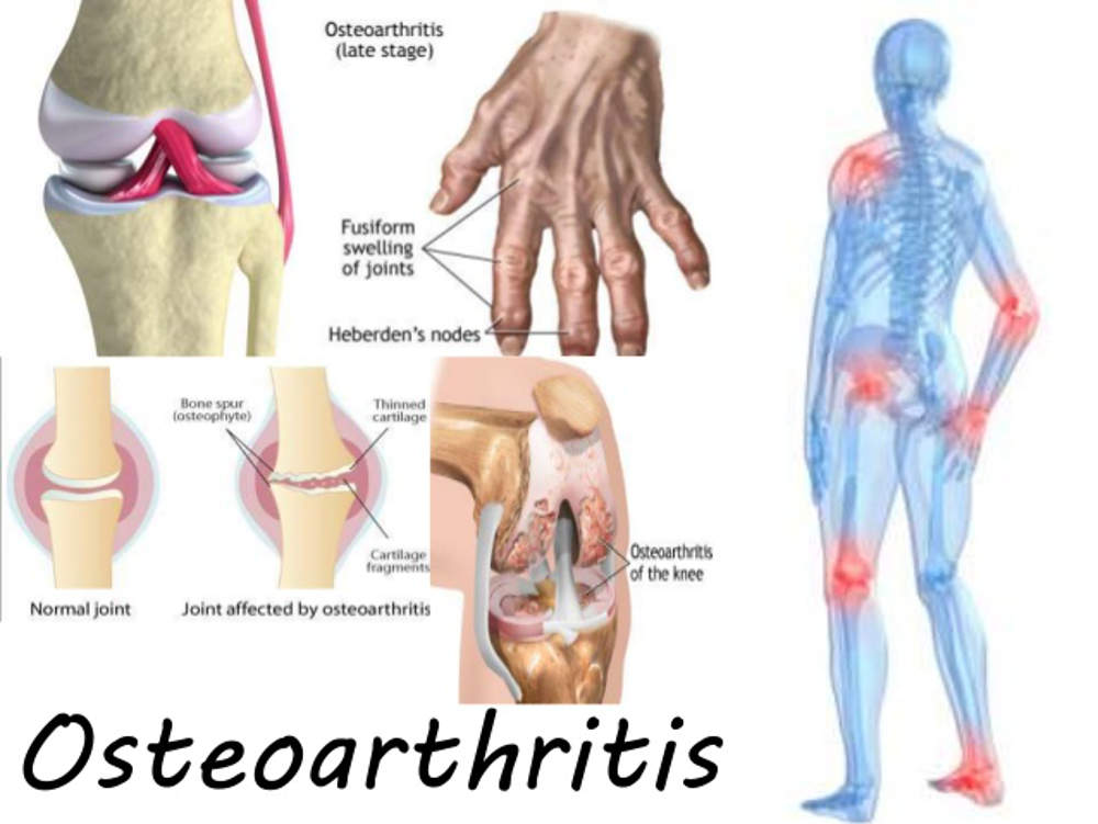Osteoarthritis Pain Reduced With Simple Changes To The Diet